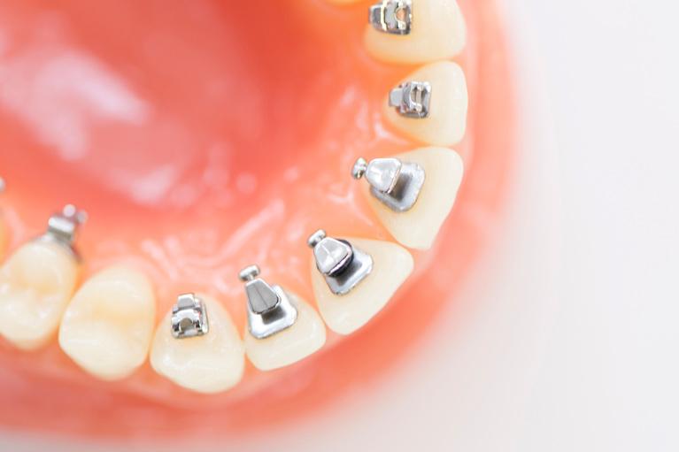 厚木矯正歯科の目立たない矯正 舌側矯正