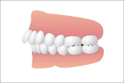 歯並び_上下顎前突