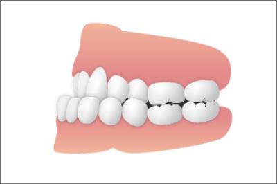 歯並び_下顎前突